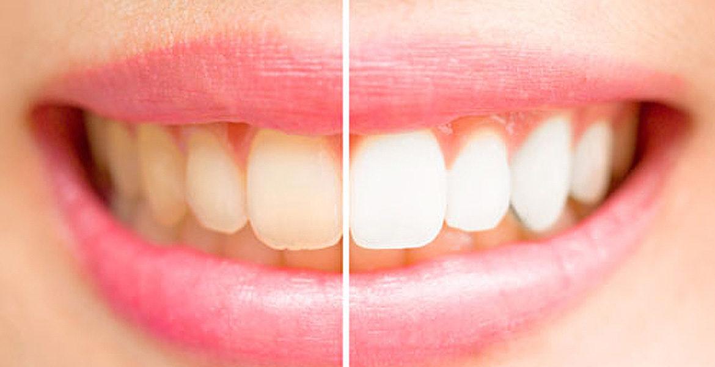 Apuesta por el blanqueamiento dental