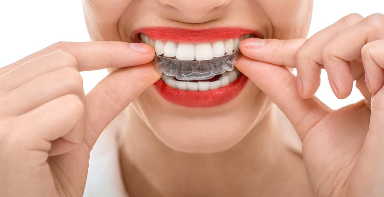 Consigue una sonrisa perfecta gracias a la ortodoncia