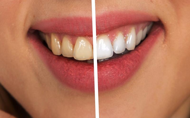 Cómo prevenir el color amarillento de los dientes