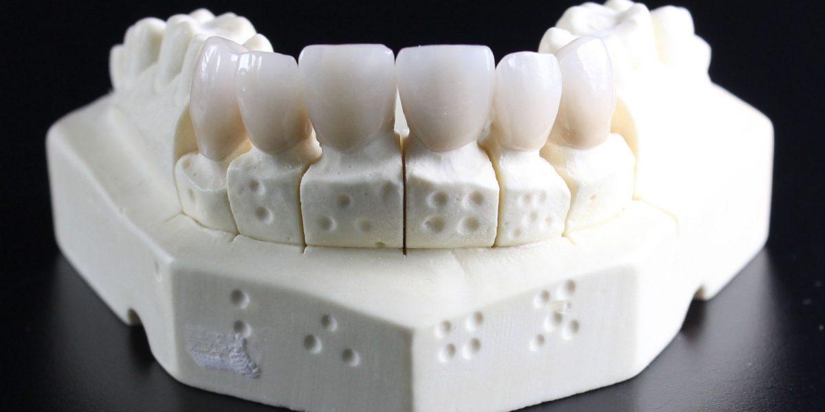La regeneración del esmalte está más cerca gracias a un gran avance científico