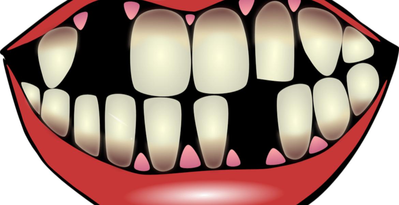 ¿Qué causa la caída de los dientes?