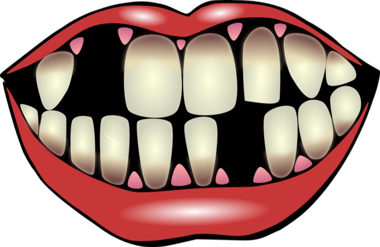Qué-causa-la-caída-de-los-dientes.png