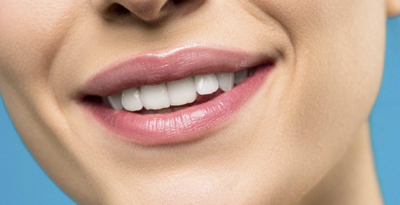 El blanqueamiento dental es mejor después de la ortodoncia