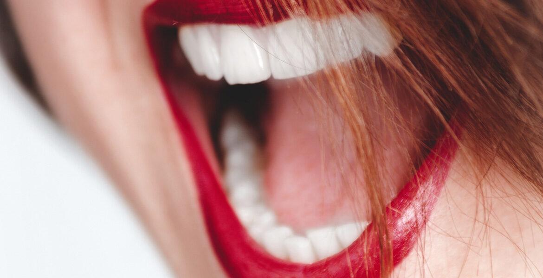Estos son los riesgos de limarse los dientes