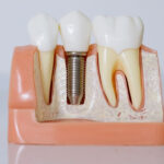 Desmontamos las cuatro excusas más usadas para no ir al dentista