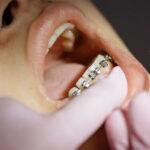 El uso de mascarillas aumenta la demanda de tratamientos de ortodoncia